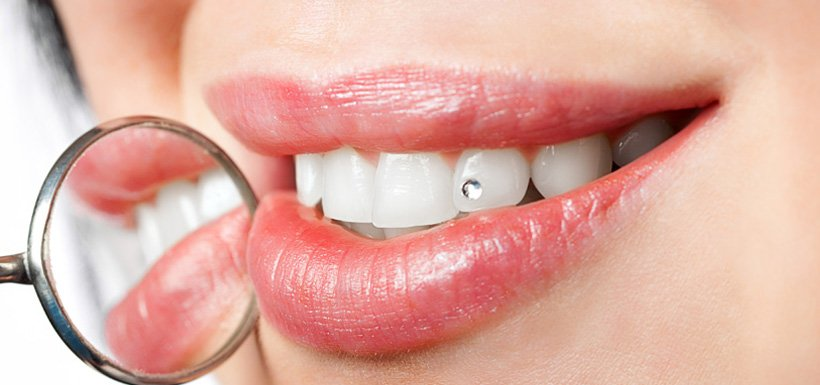 ESTETICA DENTALE - SWISS DENTAL MED