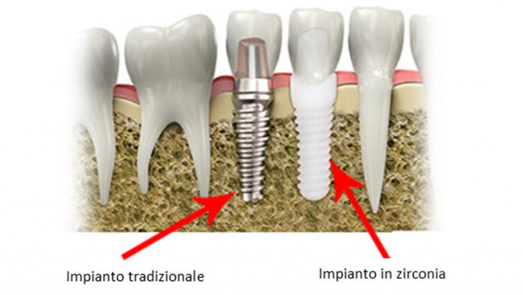 Impianti dentali in zirconio Swiss Dental Med