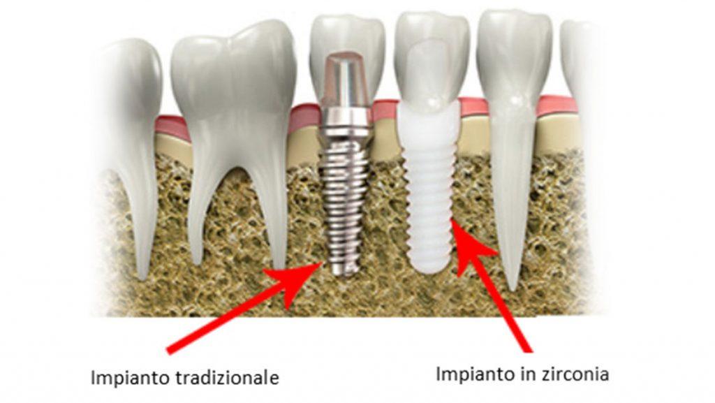Impianti dentali in zirconio Swiss Dental Med